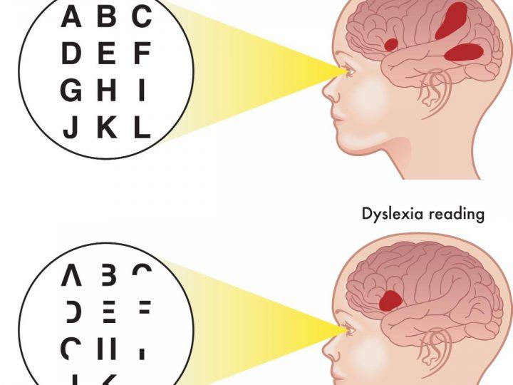 Dyslexia & Vision Problems